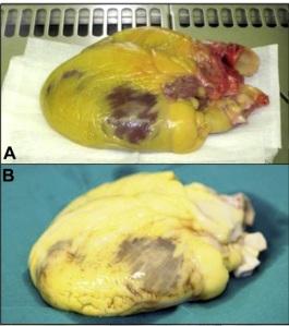 Corazón antes (A) y después (B) de quitarle las células. Imagen modificada del artículo.